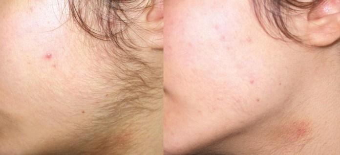 ClioMakeUp-peluria-viso-cause-rimedi-trucco-makeup-6