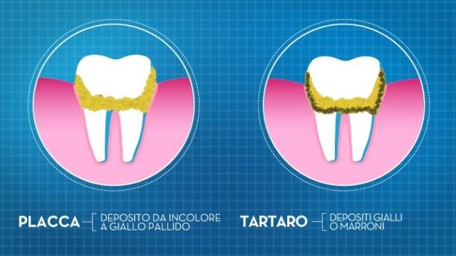 cliomakeup-denti-sani-e-bianchi-spazzolino-dentifricio-1
