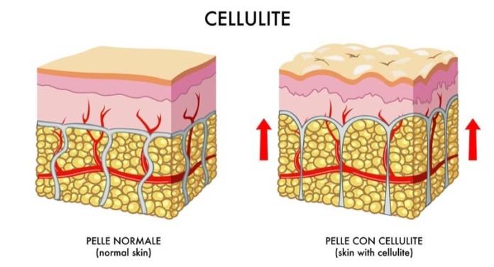 cliomakeup-ritenzione-idrica-cellulite-13-formazione-cellulite