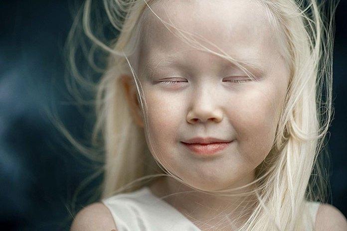 cliomakeup-albinismo-nella-moda-biancaneve-siberiana (4)