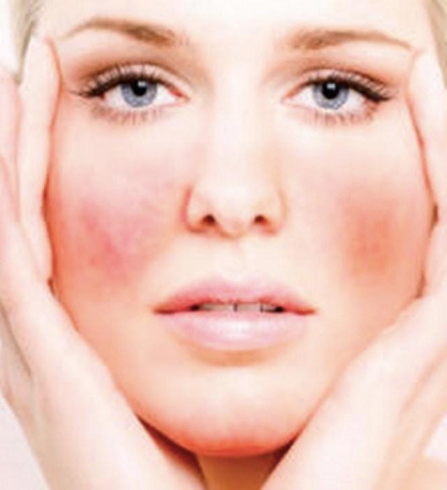 cliomakeup-cosmetici-prodotti-anallergici-14-dermatite