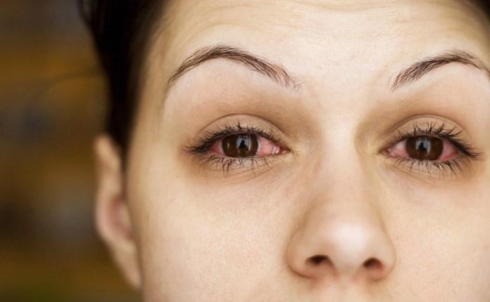 cliomakeup-cosmetici-allergie