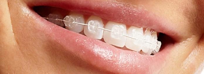 cliomakeup-apparecchio-denti-adulti-ortodonzia-estetica (2)