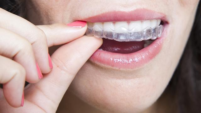 cliomakeup-apparecchio-denti-adulti-ortodonzia-estetica (4)