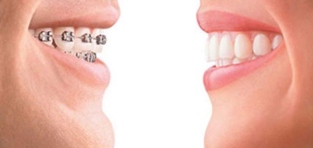 cliomakeup-apparecchio-denti-adulti-ortodonzia-estetica (13)