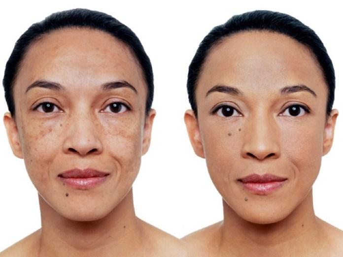 cliomakeup-correttore-prima-dopo-fondotinta-6-prima-dopo-pelle