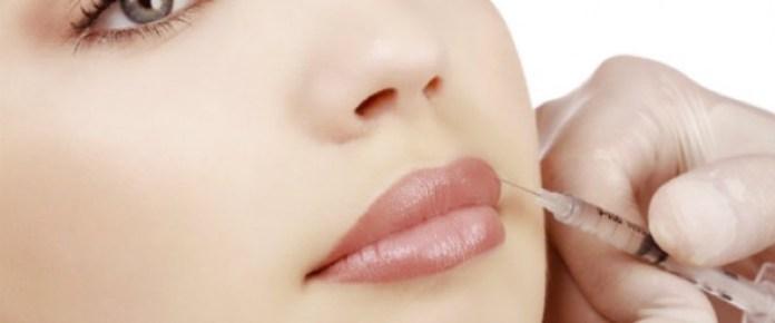 cliomakeup-filler-labbra-chirurgia-3-iniezione-lineare