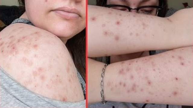 cliomakeup-dermatillomania-trattamenti-cure-cicatrici (3)