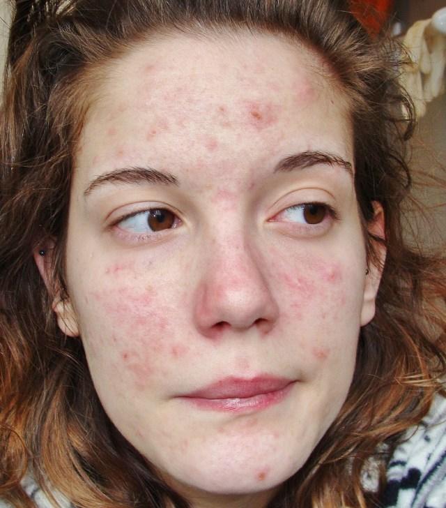 cliomakeup-dermatillomania-trattamenti-cure-cicatrici (17)
