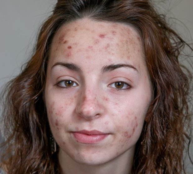 cliomakeup-dermatillomania-trattamenti-cure-cicatrici (18)