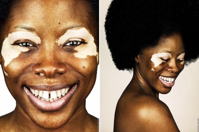 cliomakeup-foto-vitiligine-3-donna-pelle-scura