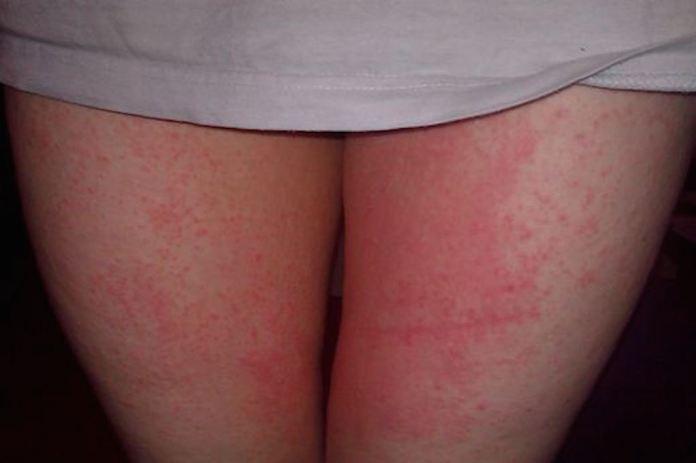cliomakeup-irritazione-sfregamento-cosce-1