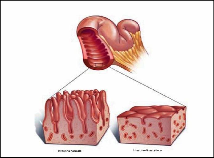 cliomakeup-celiachia-atrofia-villi-intestinali-2