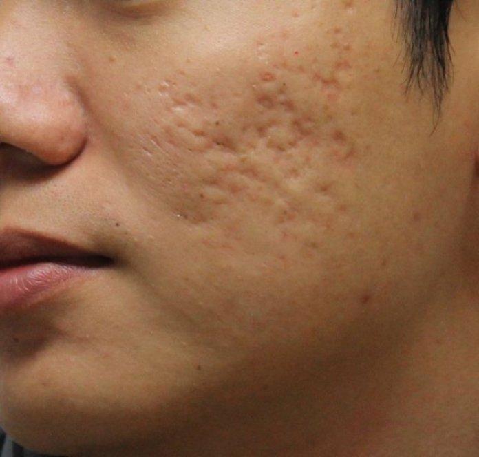 cliomakeup-skincare-per-adolescenti-3-segni-acne