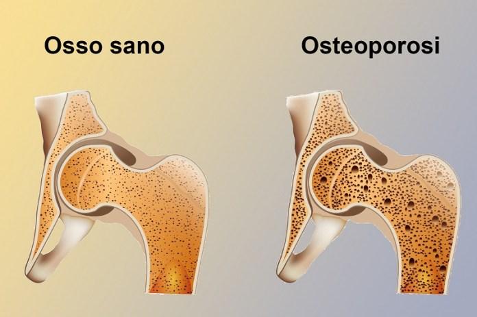 cliomakeup-ridurre-sale-osteoporosi-2