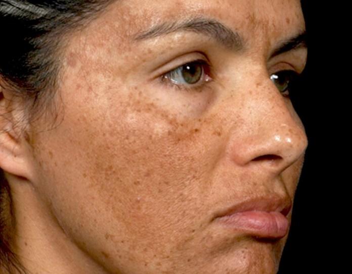 cliomakeup-macchie-scure-decollete-collo-9-melasma-pelle.viso