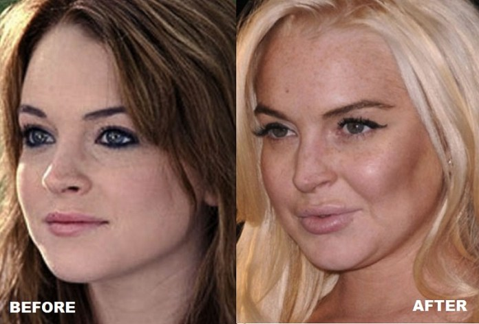 cliomakeup-attrici-seno.rifatto-15-Lindsay-Lohan-before-and-after