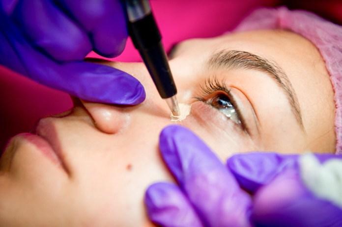 cliomakeup-tatuaggio-elimina-occhiaie-stranezze-beauty-17-occhiaie