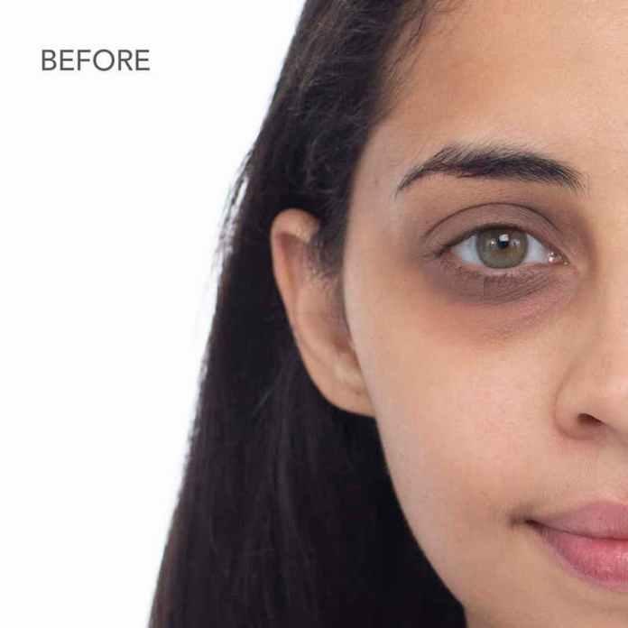ClioMakeUp-contorno-occhi-borse-occhiaie-2-occhiaie-brune.jpg