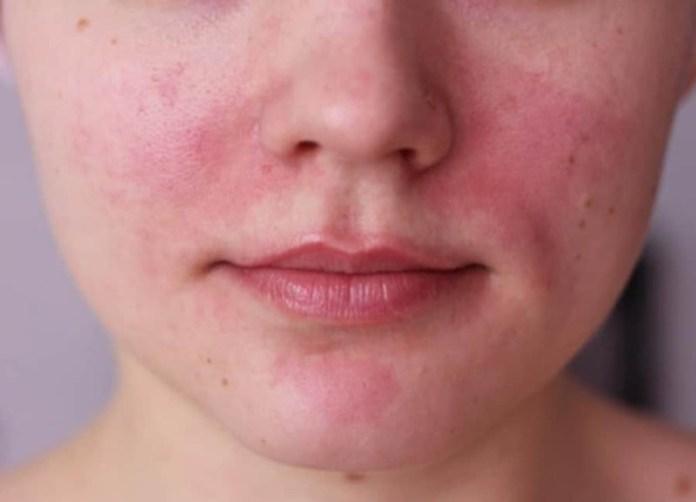 cliomakeup-skincare-anti-rosacea-9-viso-rossori