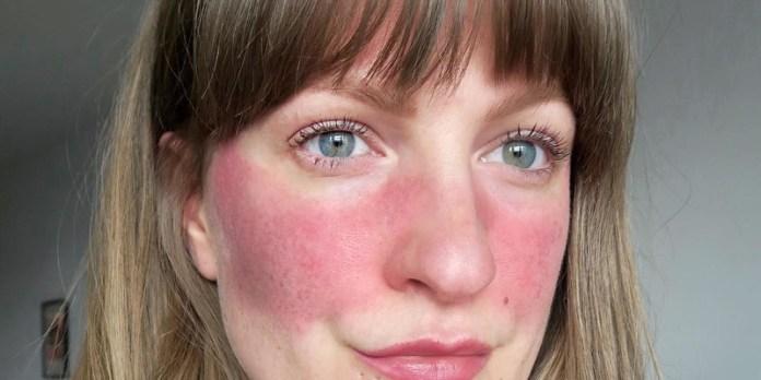 cliomakeup-skincare-anti-rosacea-18-rossore