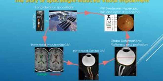 Découvert de la cause de la déficience visuelle chez les astronautes