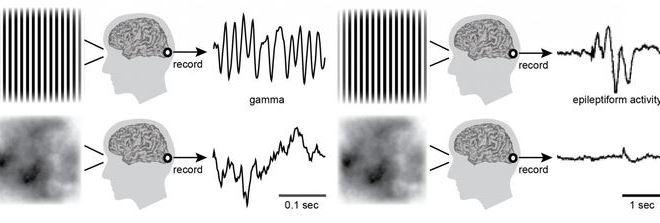 Pourquoi certaines images provoquent-elles des crises (épilepsie) ?
