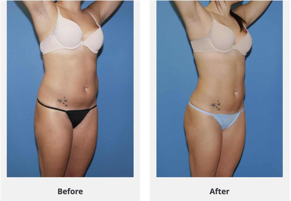 Smart Lipo Miami | Julakutuhy co