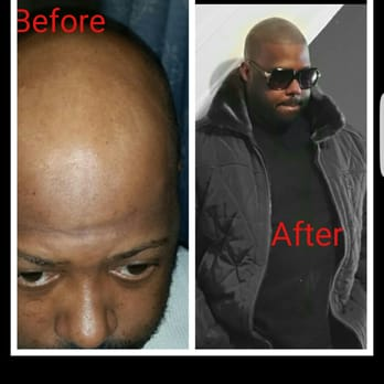 Image result for non surgical hair replacement
