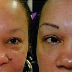 permanent makeup tattoo removal by victor permanent makeup 4101 s cooper st arlington tx