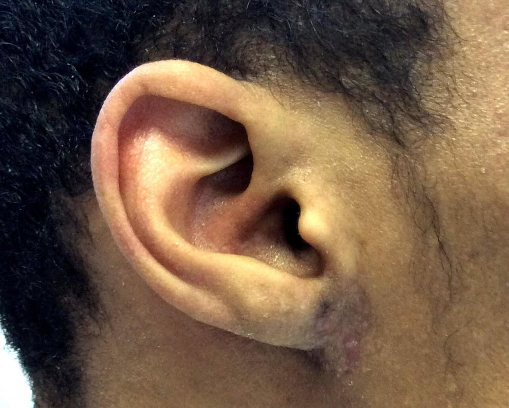 Dr. Jones Removed The Keloid Using A Combination Of Scar