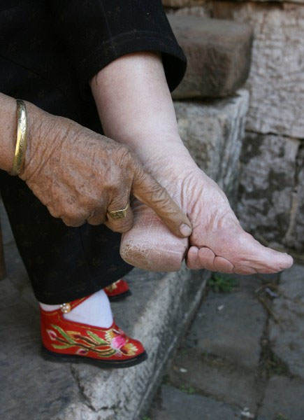 Chinese Foot 3