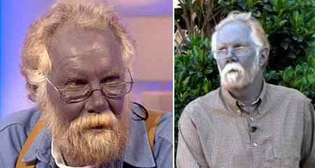 Veja o caso do homem que ficou azul