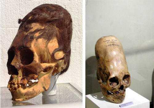 paracas-elongated-skulls-were-they-human