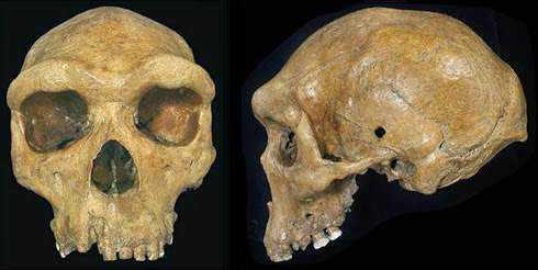 cranio hn