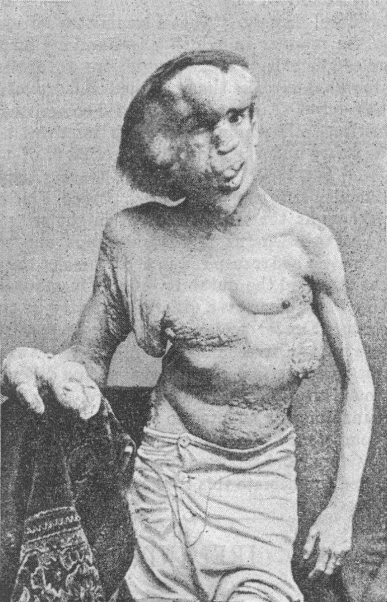 Josephmerrick1889