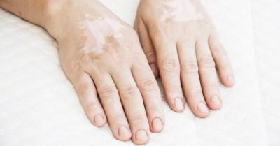 tv catia fonseca Vitiligo: O que é e como tratar Vitiligo