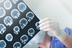 Tecnologia inovadora no tratamento da Eplepsia