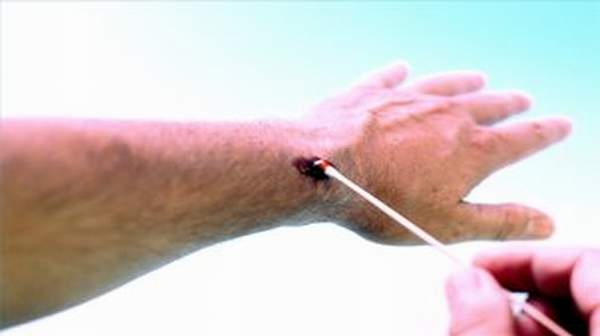 Puncture wounds: Causes, Preventions & First Aid Treatment