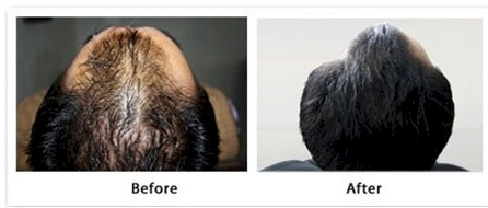 mesotherapy hair loss treatment