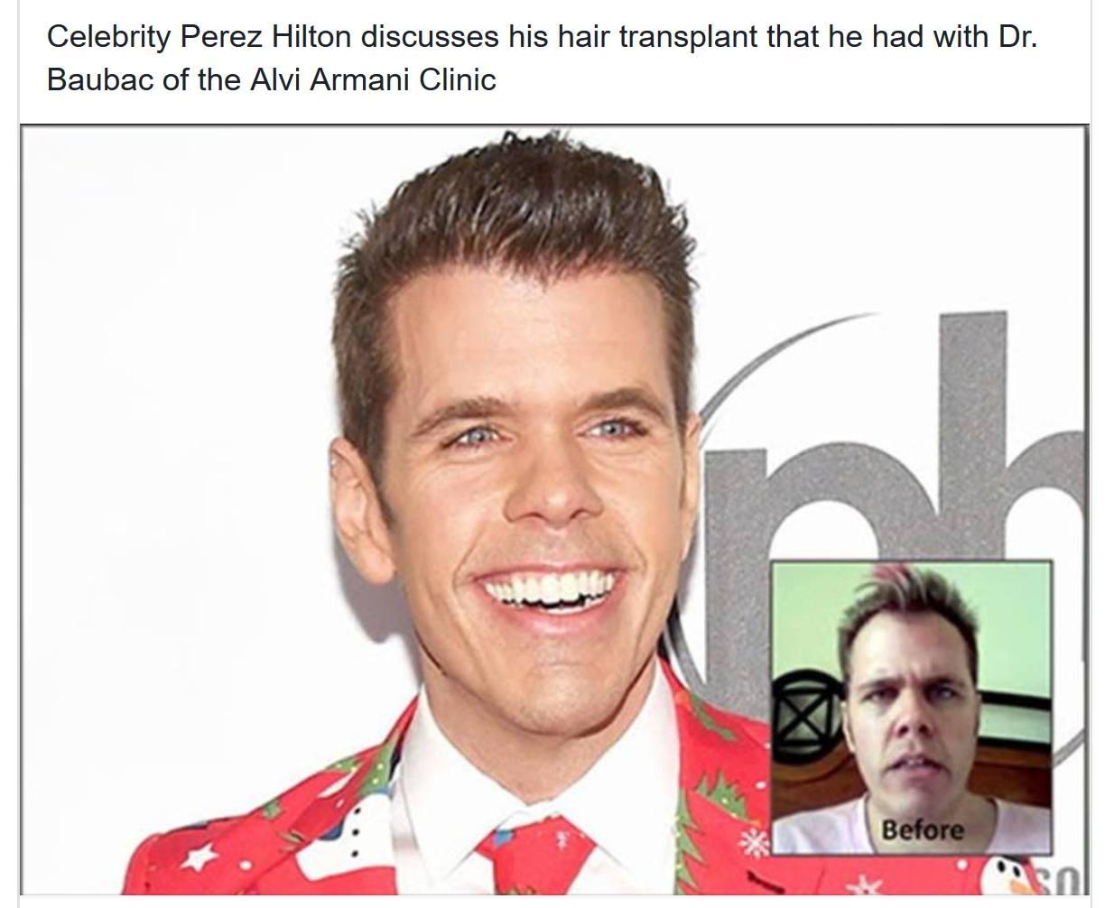 Perez Hilton Hair Transplant Results with Dr. Baubac