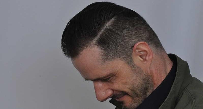 dr cole hair transplant