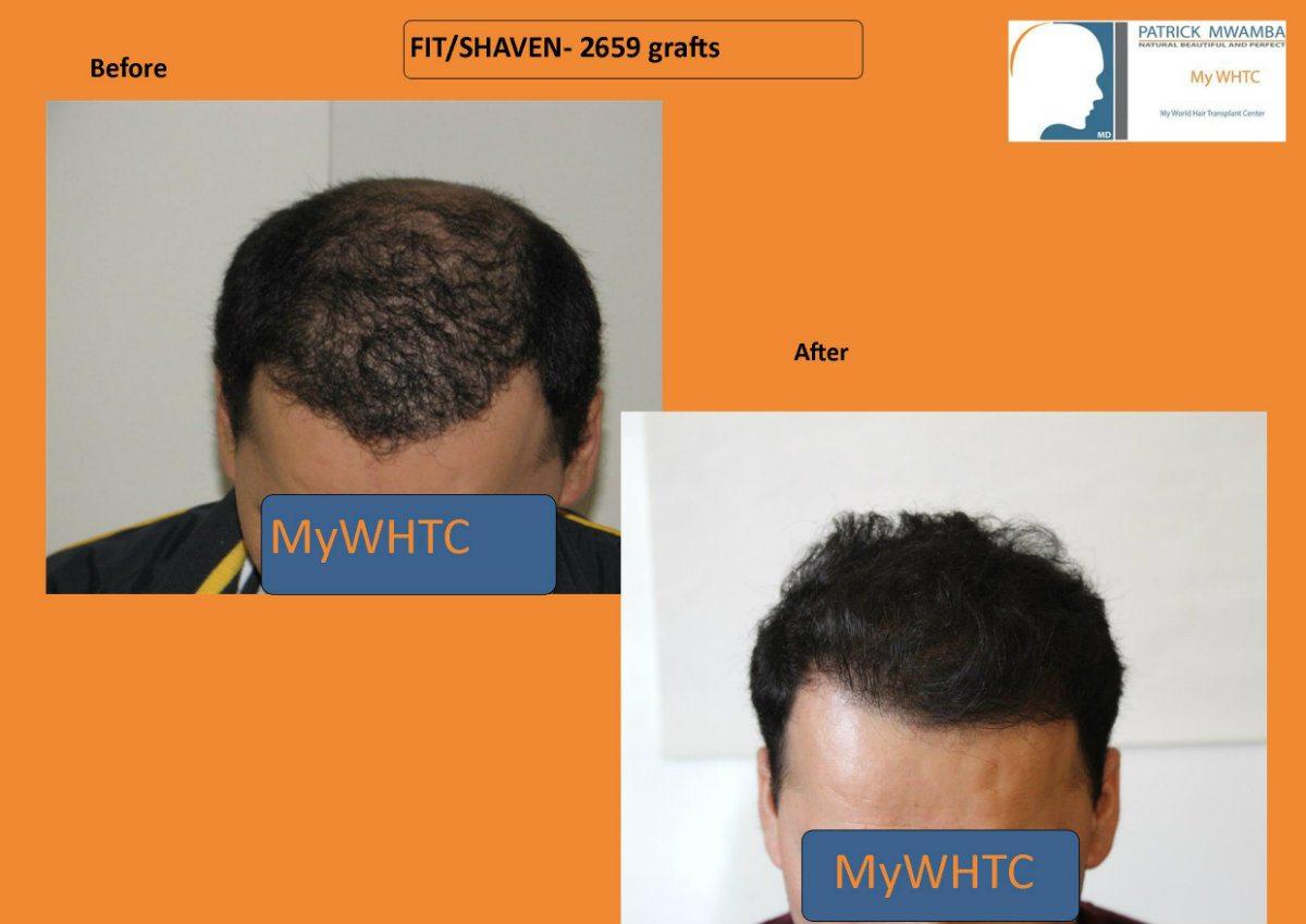 hair transplant netherlands guide