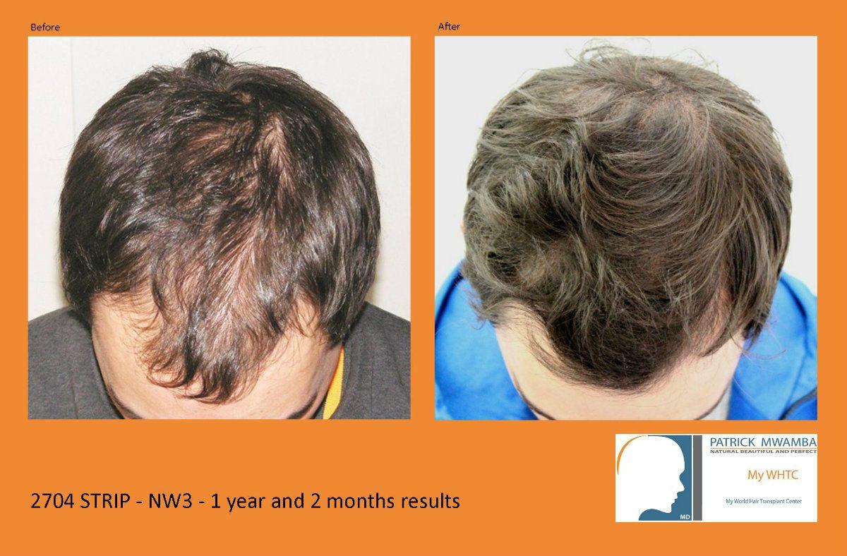 minoxidil 15 percent hair regrowth vs dr mwamba hair transplant