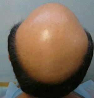 Dr. Umar Megasession Hair Transplant