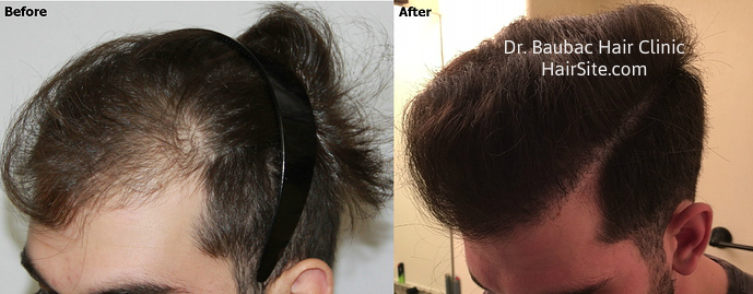 Hair Replacement Systems Nightmare Experience