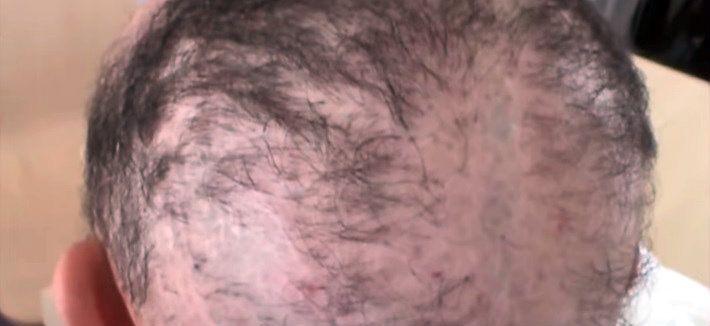 Hair Transplant Horror Stories - United States