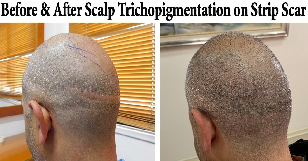 scalp micropigmentation strip scar repair