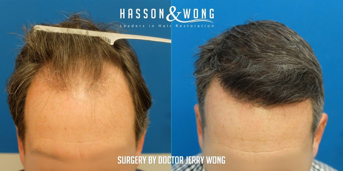 PTD-DBM CXXC5 Hair Regrowth Hair Regeneration