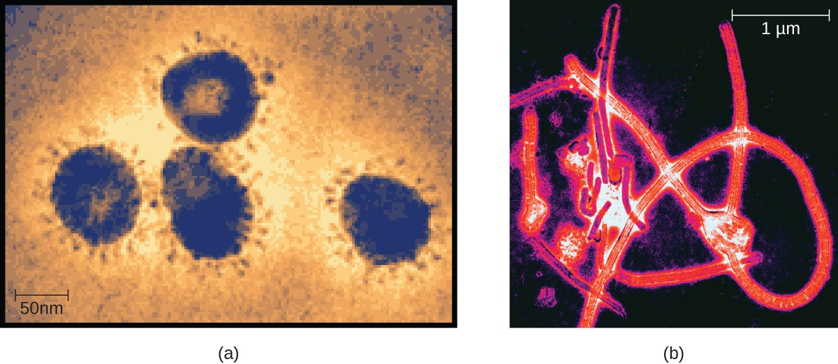 FigureA is a TEM micrograph showing large circles with many small projections protruding outwards from the edge of the circles. A scale bar shows how large 50 nanometers is relative to this micrograph. FigureB is a TEM micrograph showing long red strands forming a knot-like structure.